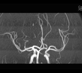 Magnetresonanz: Angiographie Kopf