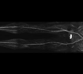 Magnetresonanz: Becken Beinangiographie