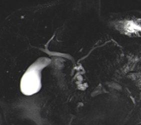 Magnetresonanz: Gallenwege und Blase