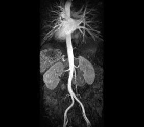 Magnetresonanz: Nieren Angio