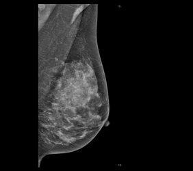 Mammographie: Dichte Brust