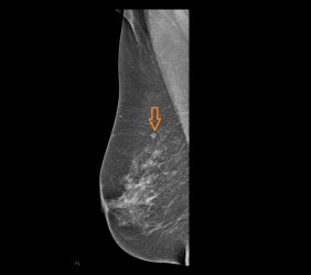 Mammographie: Karzinom links