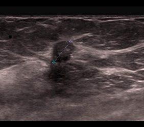 Mammographie: Karzinom Ultraschall