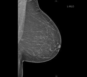 Mammographie: Mikrokalk Frühkarzinom