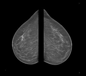 Mammographie: o.B. von oben nach unten