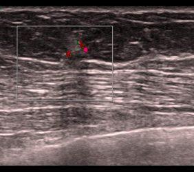 Mammographie: Sono Karzinom rechts 5mm