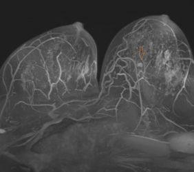 Magnetresonanz: Mammographie