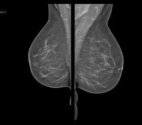 Mammographie: o.B. schräg