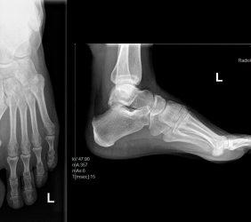 Röntgen: Fuß