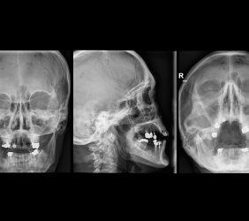 Röntgen: Nasennebenhöhlen