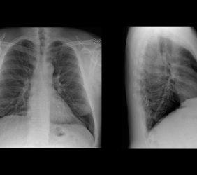 Röntgen Thorax (Brustkorb)