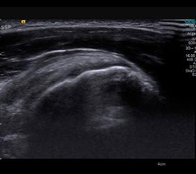 Ultraschall: Schulter