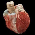 Herz-CT